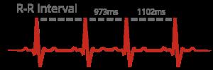 ecg-signal
